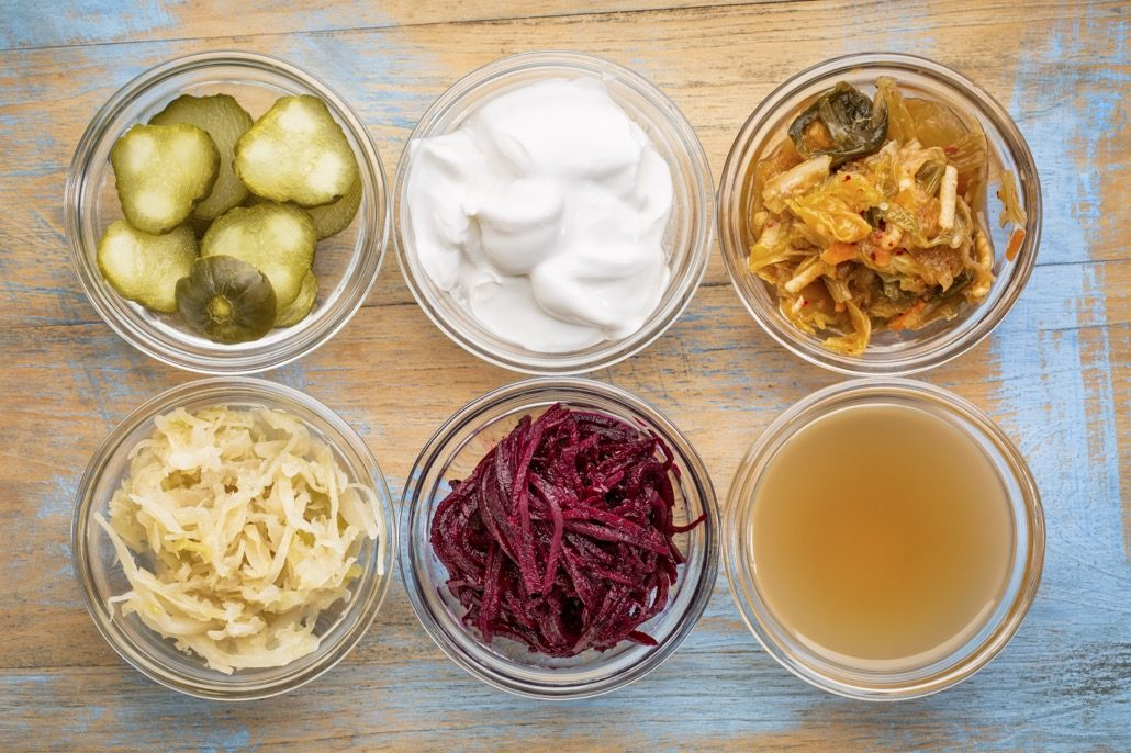 BM_fermented food collection_121141953